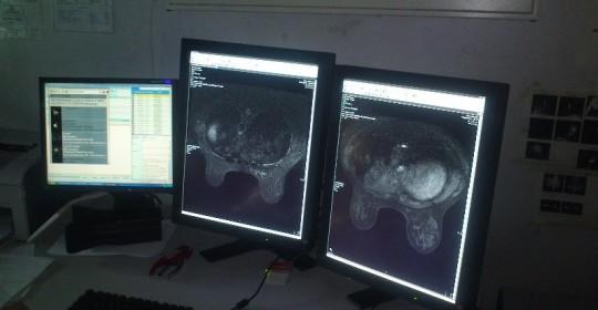 Linee guida pratiche radiologiche: «Troppe criticità. Tutto da rifare», la Commissione Salute scrive alla Lorenzin.