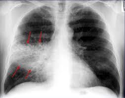"""Corso ECM FAD gratuito per tutte le Professioni Sanitarie: """"La polmonite comunitaria ai tempi del COVID-19"""". Assegnati 14,3 (quattordici,tre) crediti ECM."""